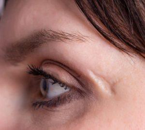 person with a facial scar near their eye
